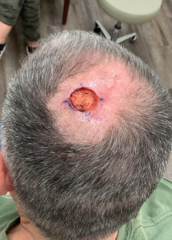 Hair Transplant post Mohs Reconstruction by Dr. Thompson